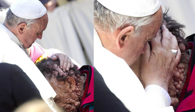 Pope%20Francis%20embracing%20a%20sick%20man